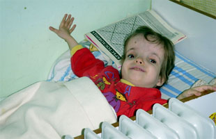 Girl in a home for children with disabilities